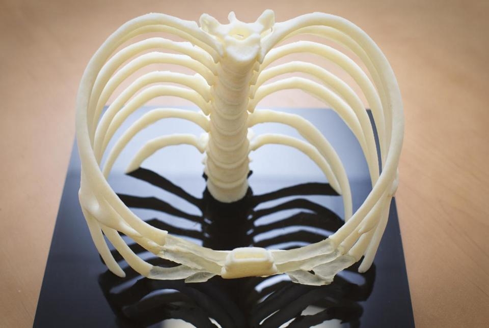 Rib cages are among the items that can be made by a 3-D printer. Concerns remain, however, about the cost and exposure to radiation in some scans necessary for printing.